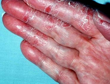 Onicomicoza: cauze, simptome, tratament