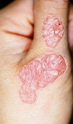 ce inseamna dermatita atopica imagini