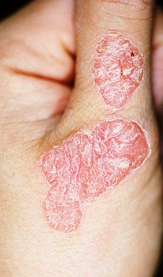 ce inseamna artrita reumatoida simptome