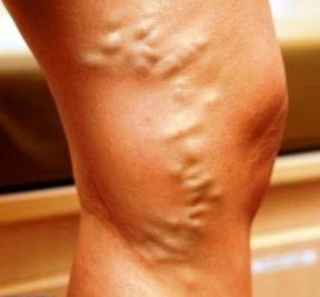 medicamente din venele varicoase pe picioare)
