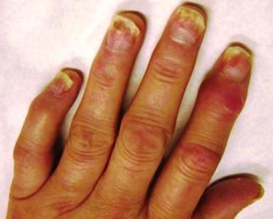 artrita psoriazica poze UHF pentru inflamația articulară